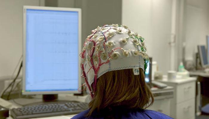 como-tratar-a-eplepsia