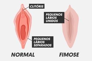 fimose-feminina