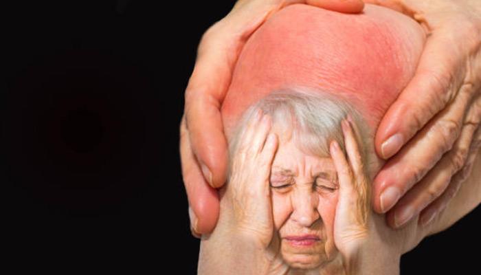 sintomas-da-artrite
