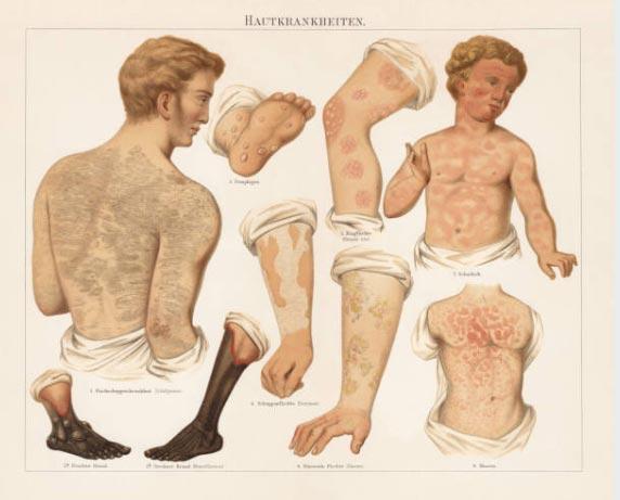 tipos-de-psoriase