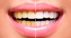 clarear-os-dentes-naturalmente-2