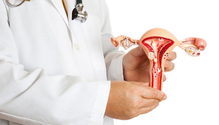 Hipogonadismo feminino